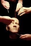 Plastische chirurgie van de gezichtsmensen op middelbare leeftijd Royalty-vrije Stock Foto