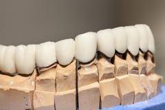 Plat de dent de porcelaine de zirconium photos stock