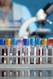 Plateau avec des tubes avec des prises de sang Photographie stock libre de droits