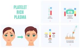 Platelet bogactwa osocze ilustracji