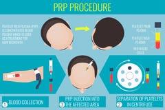 Platelet osocza bogata procedura dla mężczyzna ilustracji