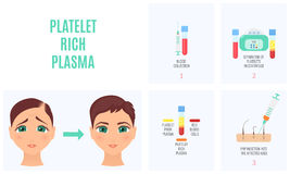 Platelet rich plasma. Female hair loss treatment with platelet rich plasma injection procedure. PRP therapy process for women. Vector illustration Royalty Free Stock Photos