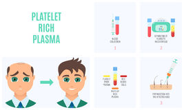 Platelet rich plasma. Injection procedure. PRP therapy process for men. Male hair loss treatment infographics. Meso therapy. Hair regrowth stimulation method Stock Images
