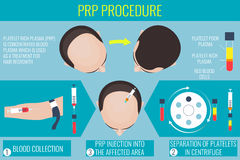 Platelet rich plasma procedure for a man Stock Images