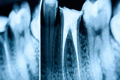 Pleine obturation des systèmes de canal radiculaire sur des dents Images libres de droits