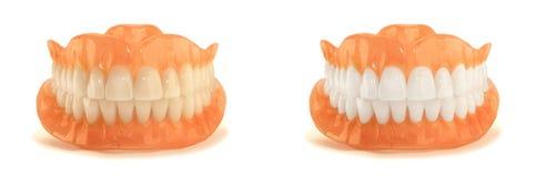 Pleins dentiers de dentier en gros plan Art dentaire orthopédique avec nous photos stock