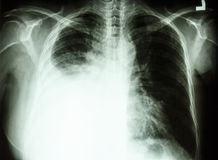 Pleural effusion due to lung cancer. Film chest X-ray PA upright : show pleural effusion at right lung due to lung cancer royalty free stock photo