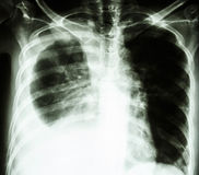 Pleural effusion due to lung cancer. Film chest X-ray PA upright : show pleural effusion at right lung due to lung cancer royalty free stock photos