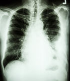 Pleural effusion at left lung due to lung cancer. Film chest X-ray PA upright : show pleural effusion at left lung due to lung cancer royalty free stock photography