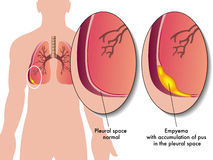 Pleural empyema. Medical illustration of the effects of the pleural empyema Stock Photo