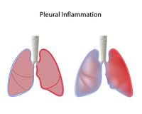Pleurisy. Inflammation of pleura of the lungs, eps10 Royalty Free Stock Photo