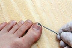 Plucking nail Stock Image