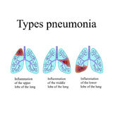 Pneumonia. The anatomical structure of the human lung. Type of pneumonia.  Vector illustration on  background Stock Image