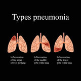 Pneumonia. The anatomical structure of the human lung. Type of pneumonia.  Vector illustration on a black background Stock Photo
