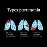 Pneumonia. The anatomical structure of the human lung. Type of pneumonia.  Vector illustration on a black background Royalty Free Stock Images