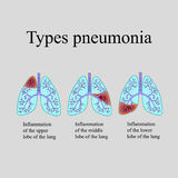 Pneumonia. The anatomical structure of the human lung. Type of pneumonia. Vector illustration on a gray background.  Royalty Free Stock Image