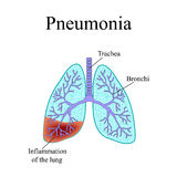 Pneumonia. The anatomical structure of the human stock photo
