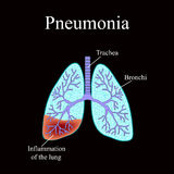 Pneumonia. The anatomical structure of the human lung. Vector illustration on a black background Stock Photos