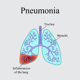 Pneumonia. The anatomical structure of the human lung. Vector illustration on a gray background Royalty Free Stock Photo