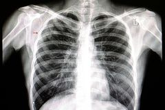 Pneumonia chest film. A chest xray film of a patient with right upper lung pneumonia royalty free stock photo