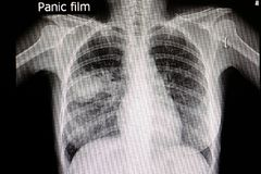Pneumonia. A chest xray film of a patient with right middle lung pneumonia royalty free stock photos