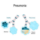 Pneumonia. Illustration shows normal and infected alveoli. Pneumonia. Healthy alveoli and alveolus with pneumonia. Illustration shows normal and infected Stock Photo