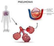 Pneumonia. Illustration, human silhouette with lungs, close up of alveoli and inflamed alveoli with fluid inside Royalty Free Stock Photo
