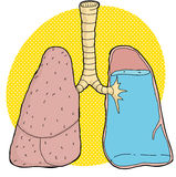Pneumonia Illustration Stock Photography