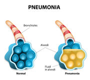 Pneumonia. Illustration shows normal and infected