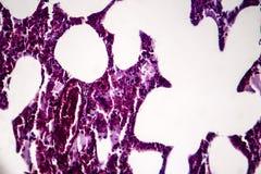 Pneumonia, light micrograph. Histopathology of pneumonia, light micrograph, photo under microscope. Cellulose aspiration pneumonia stock image