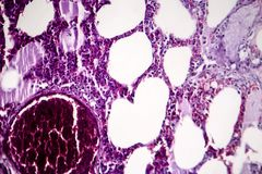 Pneumonia, light micrograph. Histopathology of pneumonia, light micrograph, photo under microscope. Cellulose aspiration pneumonia stock photos