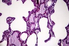 Pneumonia, light micrograph. Histopathology of pneumonia, light micrograph, photo under microscope. Cellulose aspiration pneumonia royalty free stock photo
