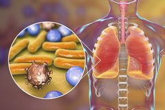 Pneumonia, medical concept, illustration showing human lungs and close-up view of microbes in lungs. Pneumonia, medical concept, 3D illustration showing human Stock Photos