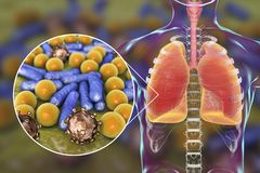 Pneumonia, medical concept, illustration showing human lungs and close-up view of microbes in lungs. Pneumonia, medical concept, 3D illustration showing human Stock Image