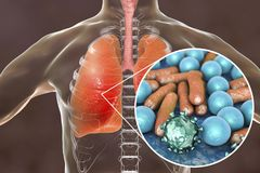 Pneumonia, medical concept, illustration showing human lungs and close-up view of microbes in lungs. Pneumonia, medical concept, 3D illustration showing human Stock Photography