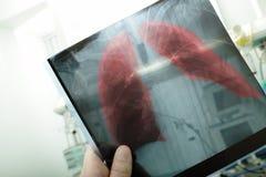 Pneumonia. On x-ray picture Stock Image
