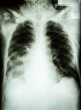 Pneumonia with respiratory failure. Film chest x-ray of patient with endotracheal tube, catheter. he was treated in ICU stock photo