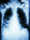 Pneumonia with respiratory failure. Film chest x-ray of patient with endotracheal tube,catheter. he was treated in ICU vector illustration