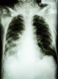 Pneumonia with respiratory failure Stock Photo