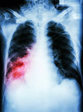 Pneumonia with respiratory failure Stock Photos