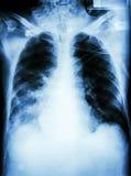 Pneumonia with respiratory failure Royalty Free Stock Photography