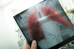 Pneumonia Stock Image