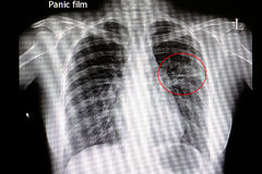Pneumonia. Xray film of a patient with pneumonia in his left middle lung Stock Image