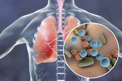 Pneumonie, concept médical, illustration montrant les poumons humains et la vue en gros plan des microbes dans des poumons Images libres de droits