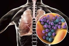 Pneumonie, concept médical, illustration montrant les poumons humains et la vue en gros plan des microbes dans des poumons Photos libres de droits
