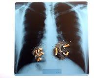 Pneumonograph Fotografia de Stock