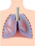 Pneumothorax. Collapsed lungs caused by air pressure from pleural space, eps10 Stock Image