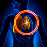 Pneumothorax - Collapsed Lung Stock Photos