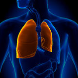 Pneumothorax - Collapsed Lung Stock Image