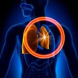 Pneumothorax - Doen ineenstorten Long Stock Foto's